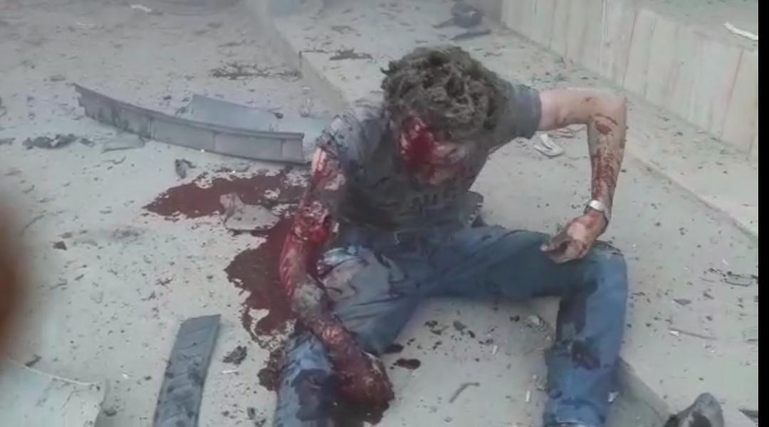 صحفيون كانوا شاهدين على مجزرة الطيران التركي بحق المدنيين في رأس العين/ سريه كانييه